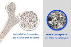 Die Natur vermeidet jede Form der Überdimensionierung. Das zeigt sich beim Aufbau menschlicher Knochen, die aus idealen, multizellulären Porenstrukturen bestehen. Ecosphere orientiert sich an diesem Beispiel